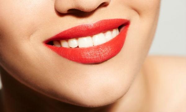 tecalliage facettes dentaires